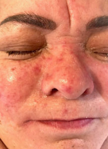 clear up Psoriasis